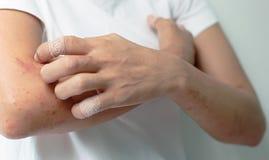 Pijnlijke plekken van het krassen van allergie aan wapenvrouwen Stock Foto