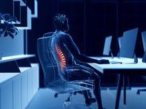 Pijnlijke rug vector illustratie