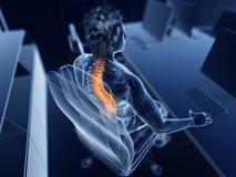 Pijnlijke rug stock illustratie