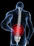 Pijnlijke rug Stock Foto's