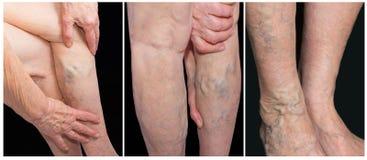 Pijnlijke spataders, spinaders, varices op een streng beïnvloed been Verouderend, oude dagziekte, esthetisch probleem stock foto's