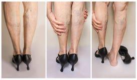 Pijnlijke varikeuze en spinaders op vrouwelijke benen Vrouw die in hielen vermoeide benen masseert royalty-vrije stock afbeeldingen