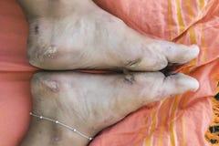 Pijnlijke wandelaar` s voeten Stock Afbeelding