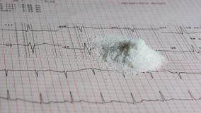Pila de sal en ECG Foto de archivo
