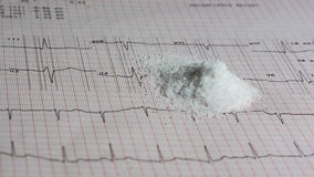 Pile of salt on EKG. Pile of salt on an EKG test result - Electrocardiogram Stock Photo