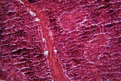 Pilhas do pâncreas sob o microscópio fotos de stock