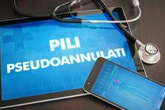 Pili pseudoaannulati (cutaneous disease) diagnosis medical conce Royalty Free Stock Photos