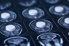 Pillole, compresse e imaging a risonanza magnetica e lastra radioscopica rese fotografia stock