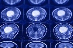 Pillole sull'imaging a risonanza magnetica e sulla ricerca della lastra radioscopica fotografie stock libere da diritti