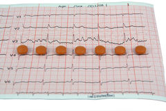 Pills on ECG. Medical pills on a ECG strip. Heart disease and a ECG strip Stock Image