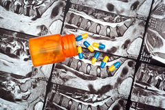 Pills on MRI of spine Royalty Free Stock Photography