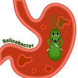 Piloros de Helicobacter úlceras ilustração stock