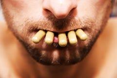 Pilules dans sa bouche Photographie stock libre de droits