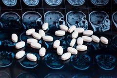 Pilules pharmaceutiques blanches de médecine sur le fond magnétique de mri de balayage de résonance de cerveau Thème de pharmacie photos stock