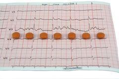 Pilules sur ECG Image stock