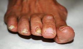 Pilz auf dem Nagel Verdrehte Finger auf dem Fuß mit Schwielen Knochen auf der großen Zehe Lizenzfreie Stockfotos