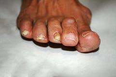 Pilz auf dem Nagel Verdrehte Finger auf dem Fuß mit Schwielen Knochen auf der großen Zehe Stockbild
