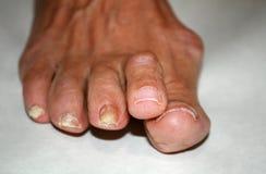 Pilz auf dem Nagel Verdrehte Finger auf dem Fuß mit Schwielen Knochen auf der großen Zehe Stockfotografie
