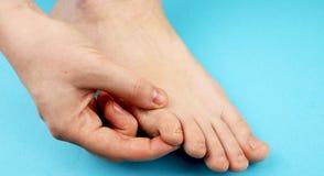 Pilz der Fußnahaufnahme, auf blauem Hintergrund Die Konzeptdermatologie, -behandlung pilzartig und -Mykosen in den Menschen stockfotografie