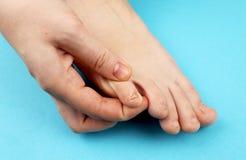 Pilz der Fußnahaufnahme, lokalisiert auf blauem Hintergrund Die Konzeptdermatologie, -behandlung pilzartig und -Mykosen in den Me lizenzfreies stockfoto