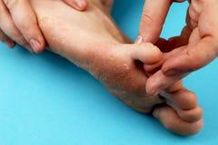 Pilz der Fußnahaufnahme, lokalisiert auf blauem Hintergrund Die Konzeptdermatologie, -behandlung pilzartig und -Mykosen in den Me lizenzfreie stockfotografie