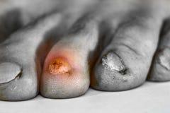 Pilzartige Infektion auf Nägeln von männlichen Füßen stockbild