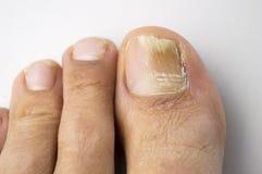 Pilzartige Nagelinfektion lizenzfreies stockbild