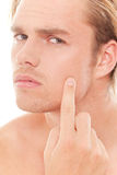 Pimple Royalty Free Stock Image