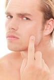 Pimple Lizenzfreies Stockbild