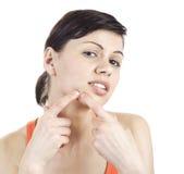 pimple Imagem de Stock