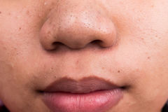 Pimple blackheads on the nose and lips Royalty Free Stock Photo