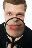 Pimple on lip. The inflammatory process in the lip at the guy seen through a magnifying glass royalty free stock photography