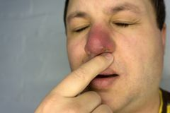 Pimple on the nose hurts and itches . royalty free stock image