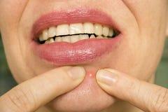 Pimple sul fronte femminile Fotografia Stock Libera da Diritti