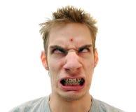 Pimple sulla fronte Immagini Stock