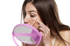pimples foto de stock