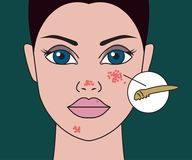 Pimples on skin Royalty Free Stock Image