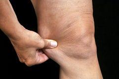 Pincez la graisse du genou images stock
