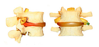 Pinched spinal nerve model. Plastic models of a pinched nerve and herniated disk of a human spine Stock Photos