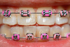 Pink braces. Of a teenager Royalty Free Stock Photo