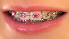 Pink braces. Close up of a beautiful pink braces Royalty Free Stock Photos