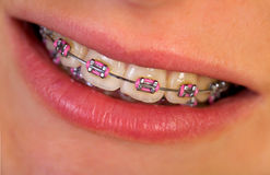 Pink braces Stock Photos
