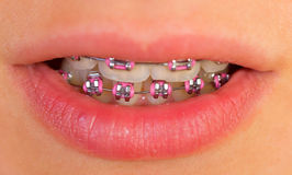 Pink braces Royalty Free Stock Photography