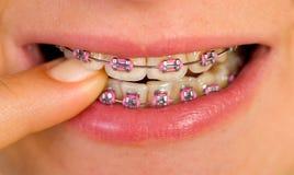 Pink braces Stock Photos