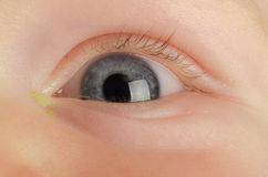 Pink eye (Conjunctivitis). Infection on a baby Stock Photo
