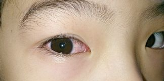 Pink right eye. Red eye caused by infection Royalty Free Stock Photo