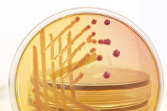 Pink and yellow bacterial culture on agar with other dishes in the background Stock Photo