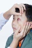 Pinkeye (bindhinneinflammation) infektion på en pojke, övre öga för doktorskontroll royaltyfri fotografi