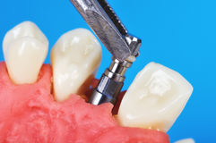 Pinzette, die Zahnimplantat hält stockbild