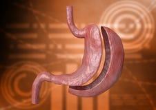 Pionowo rękawa Gastrectomy Bariatric operacja z redukcją rozmiar żołądek dla ciężar straty i straty ciało ciężar ilustracji